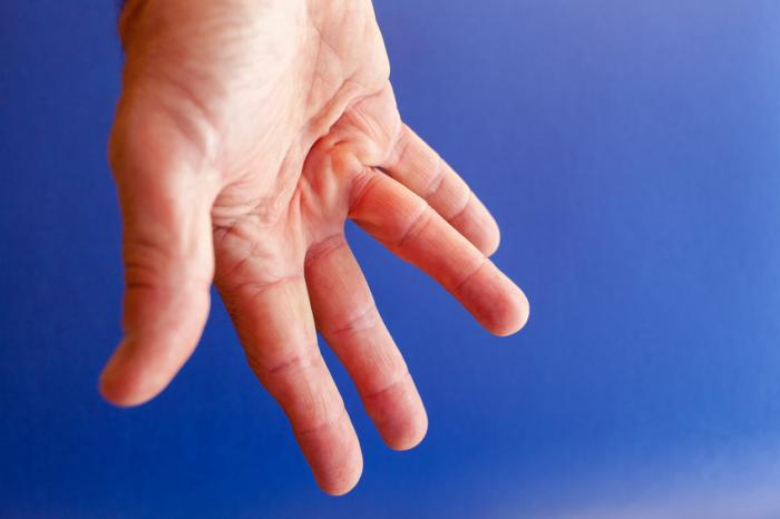 [dupuytens contracture]