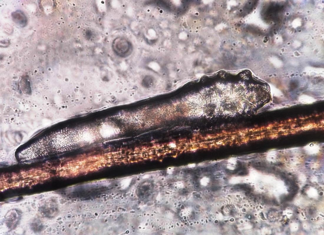 Что такое Demodex folliculorum? - ClearBody.Org